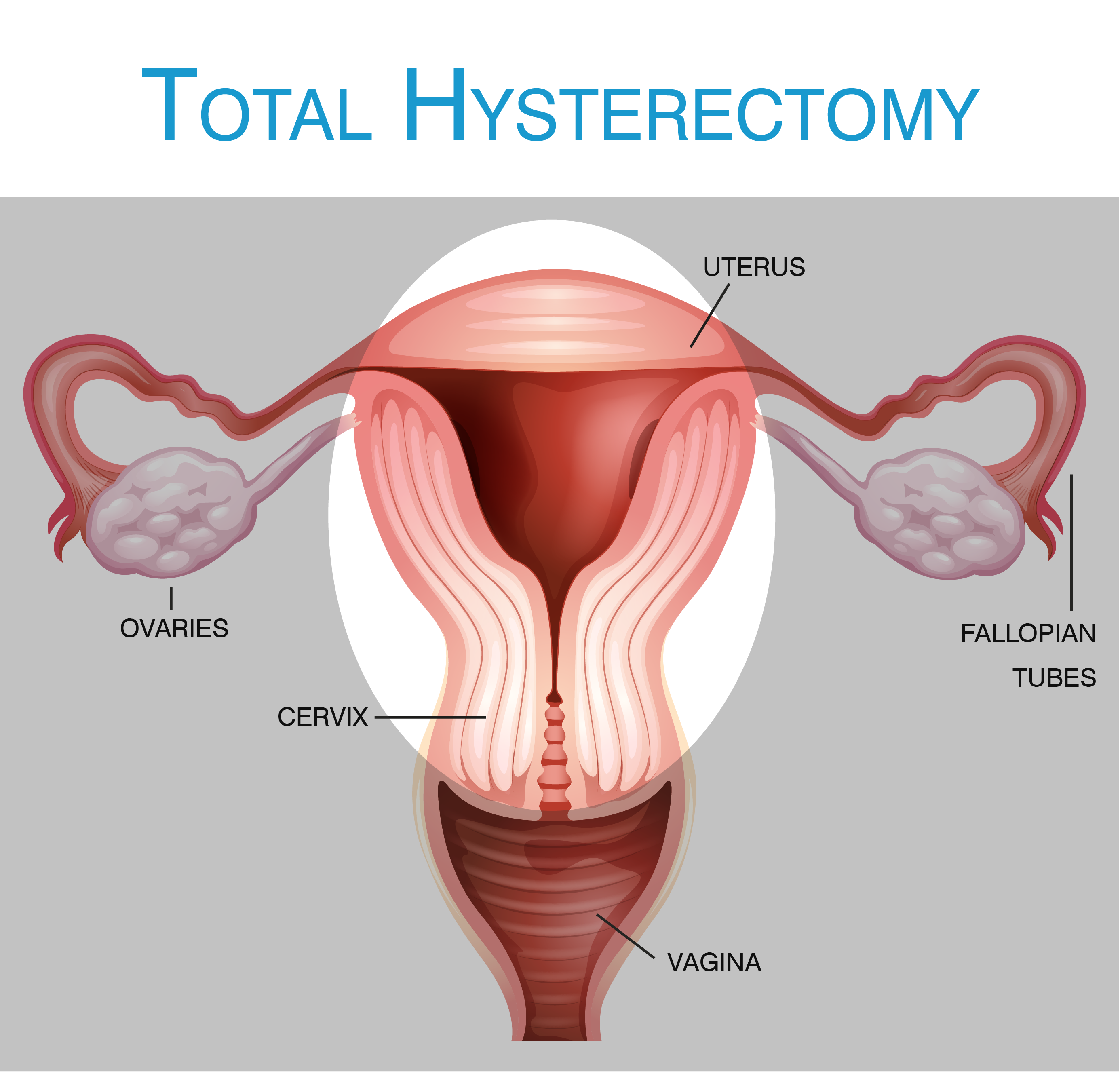 what is a hysterectomy  : hysterectomy diagram - findchart.co
