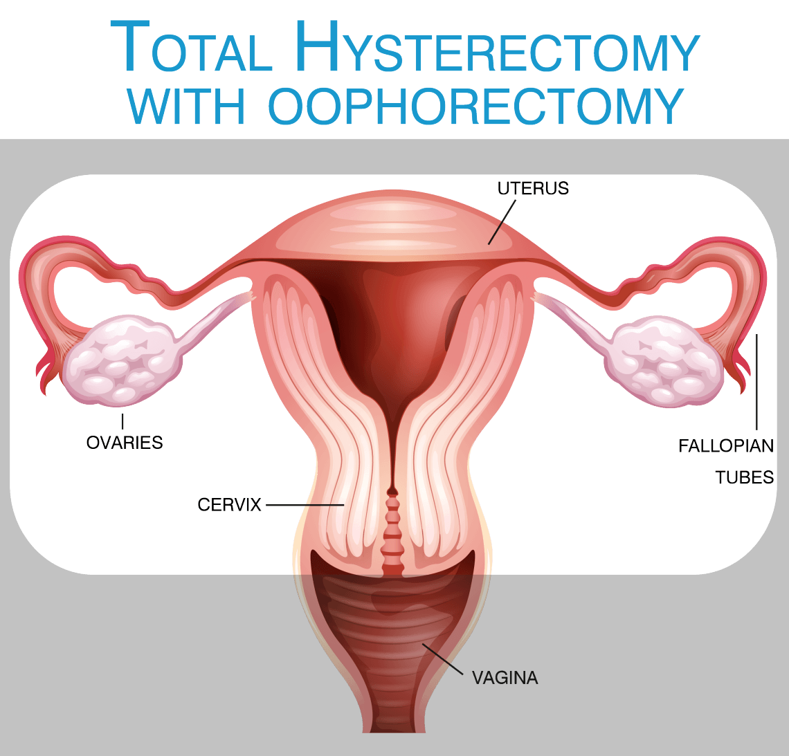 Do you know what a hysterectomy is? And – what it is NOT?