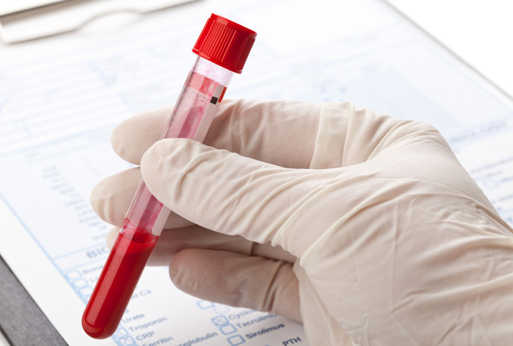 Endometriosis Might be Determined By Blood Test