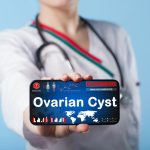 doctor holding up tablet with about ovarian cysts