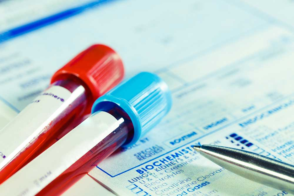 Simplifying access to gene testing for women with ovarian cancer