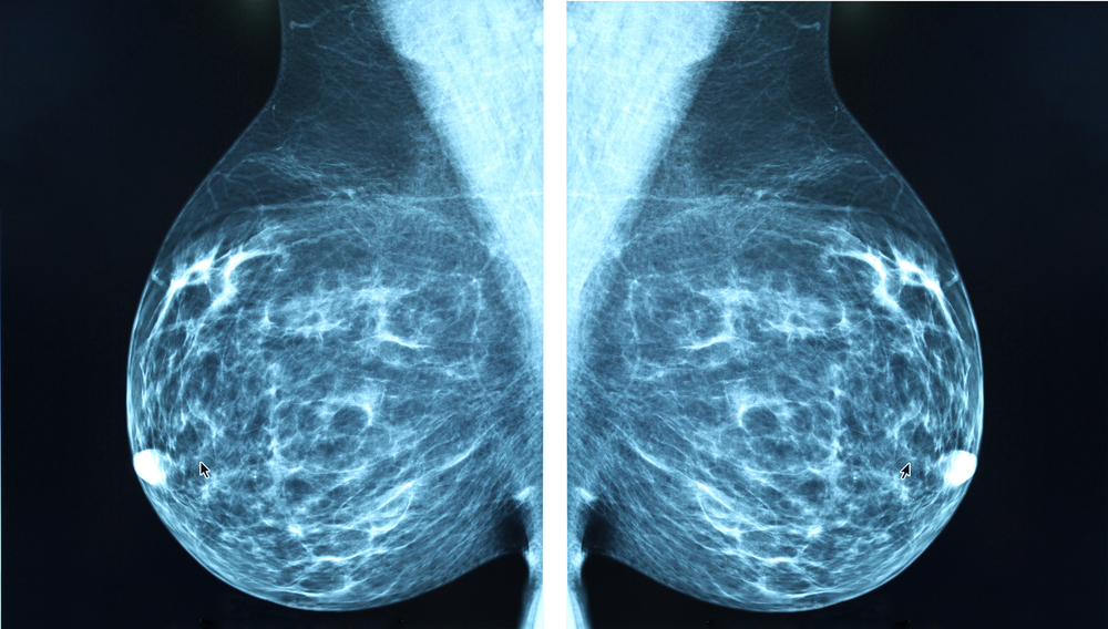 New approach for hard-to-treat BRCA breast cancer shrinks tumours twice as fast