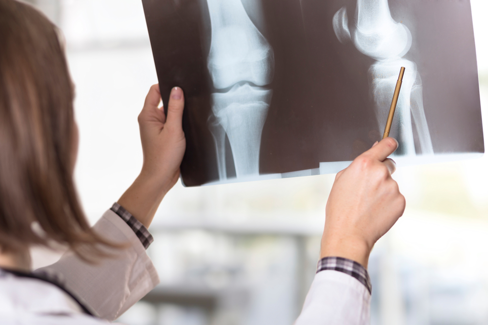 How does estrogen protect bones? Unraveling a pathway to menopausal bone loss