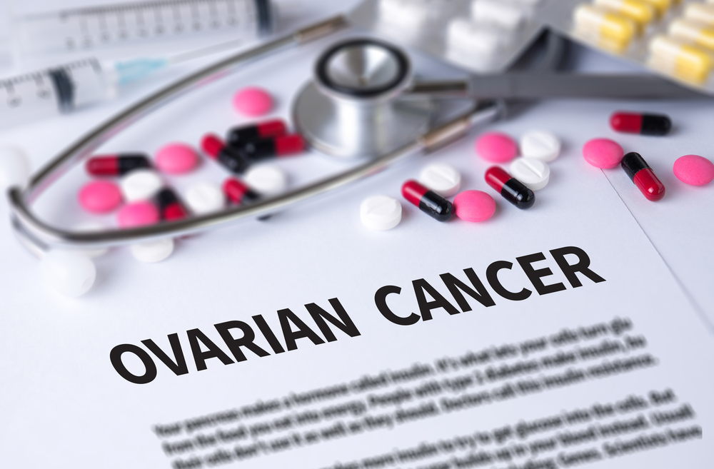 Treatment Approaches Evolving in Recurrent Ovarian Cancer