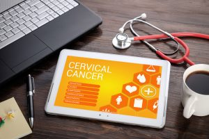 Advanced Radiation Therapy Has Fewer Side Effects In Cervical Cancer After Hysterectomy