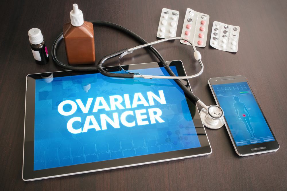 Study finds 12 genetic variants that raise the risk of ovarian cancer
